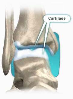 The Secret Life of Cartilage – Part II